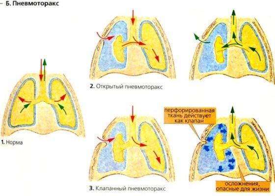 Симптомы и лечение пневмоторакса легкого